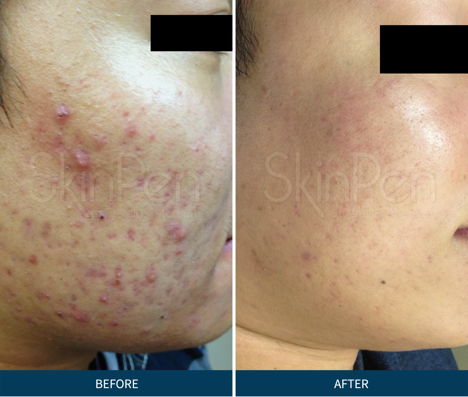 PRP Microneedling with Red Light & Nrf2 | Activation Clinic